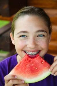 , Brace yourself for SUMMER!, Cooper Chockley & Misner Orthodontics