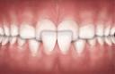 cross bite teeth