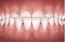 underbite teeth