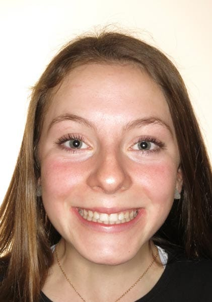 , Before & After, Cooper Chockley & Misner Orthodontics
