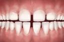 excessive teeth spacing