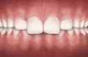 overbite teeth