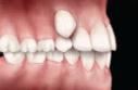 abnormal eruption tooth