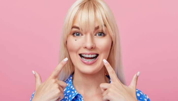 woman pointing to her clear braces