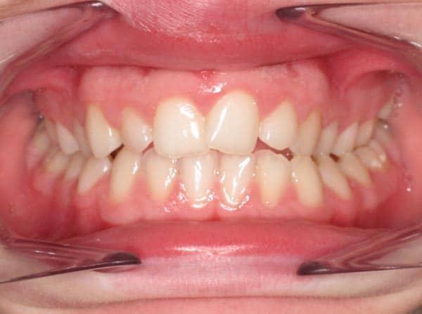 , Before & After, Cooper & Misner Orthodontics